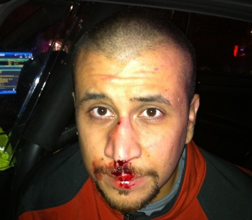George Zimmerman, immediately following the vicious attack upon him by Trayvon Martin