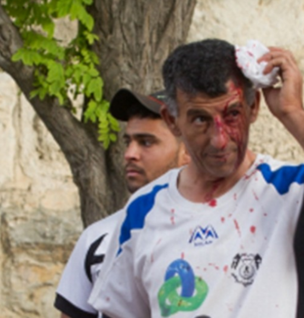 Palestinian man injured after being hit by Arabs seeking to prevent him from joining the annual 'Big Hug' in Jerusalem | May 2015 | Credit: Voice of Israel